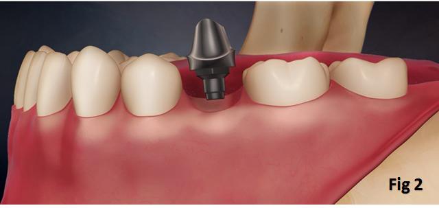Implant Surgery Singapore