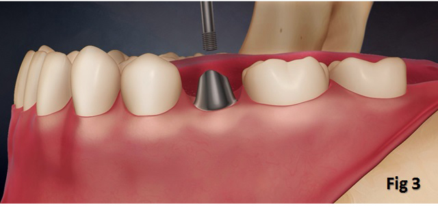 Tooth Implant In Singapore