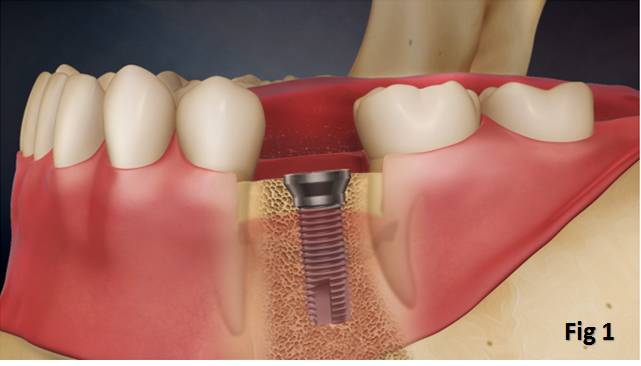 Dental Implant Singapore